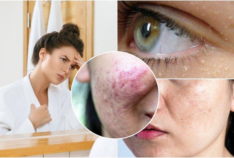 Pamirškite veido miliumus ir pigmentines dėmes: ekspertė pasakė, ką daryti (nuotr. 123rf.com)