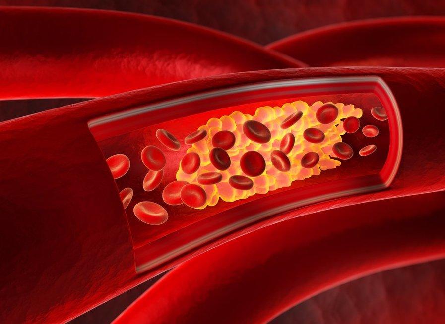 Aukštas cholesterolio kiekis