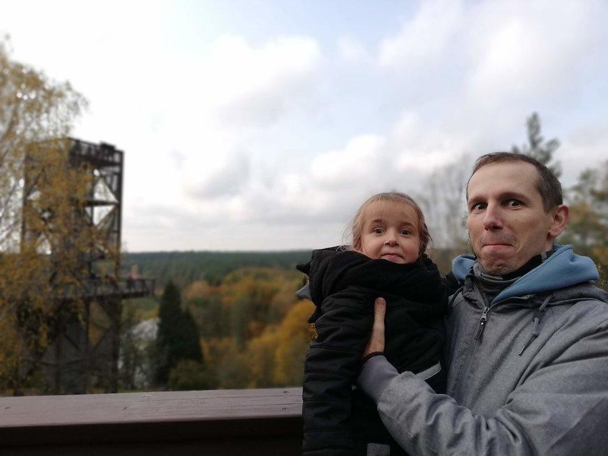 Jaudinanti kauniečių istorija: tėtis išgelbėjo dukrai gyvybę paaukojęs dalelę savęs
