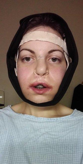 Po žandikaulių operacijos