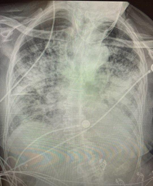Koronavirusu persirgusio paciento plaučiai