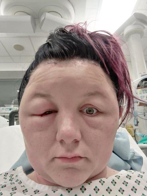Leonie Dee buvo paguldyta į ligoninę po bandymo plaukus nusidažyti namuose