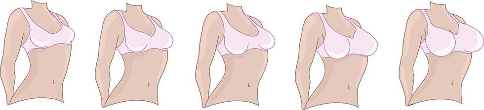 Krūtų dydžiai (nuotr. Fotolia.com)