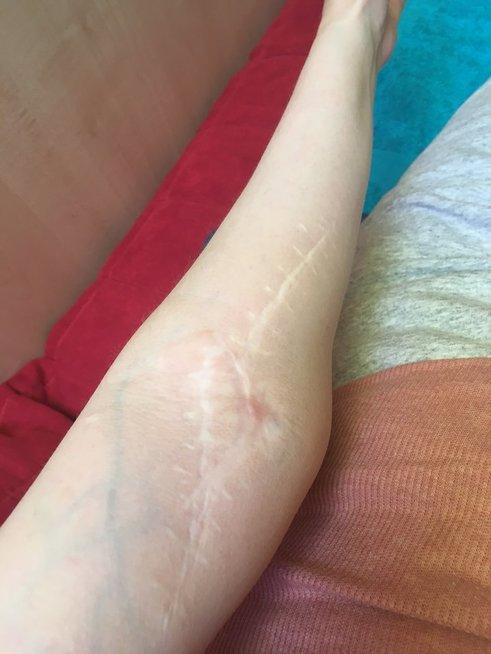 Po operacijos likęs randas ant Rūtos rankos