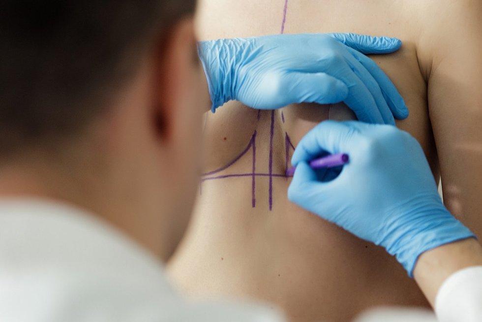 Asociatyvi nuotrauka – krūtinės didinimo operacijos užkulisiai (nuotr. Organizatorių)