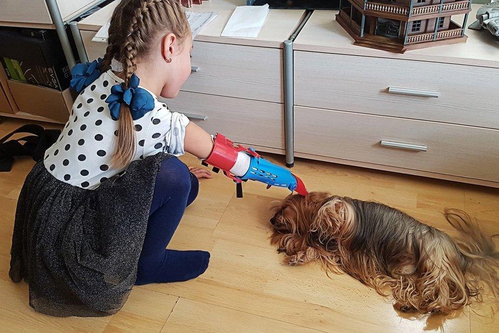 Mažvydas Sverdiolas 3D spausdintuvu sukūrė pirmąjį pagalbinį įtaisą rankos negalią turinčiai Aurilei. (nuotr. asm. archyvo)