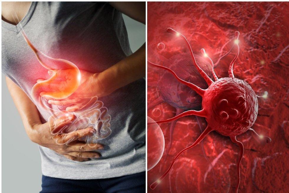 Skrandžio vėžys (nuotr. 123rf.com)