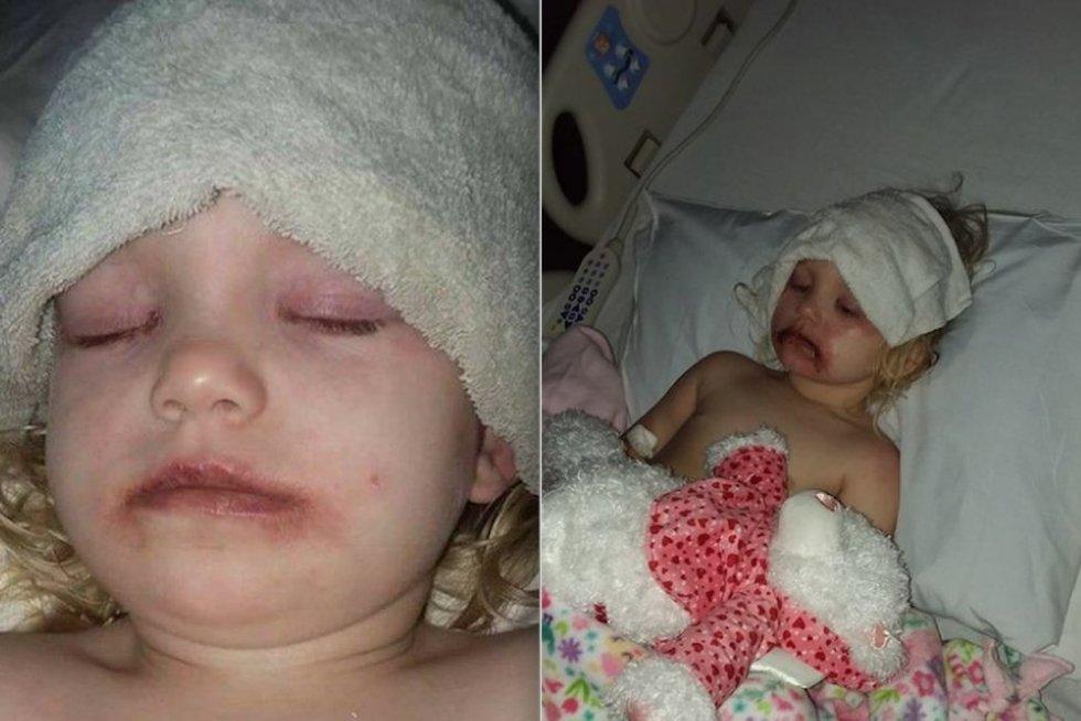 Košmarą patyrusios 3-metės mama kreipiasi į žmones: paviešino šias nuotraukas
