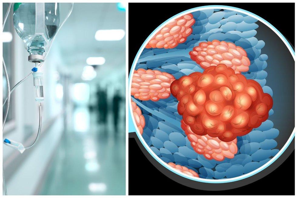 Krūties vėžys  (nuotr. 123rf.com)