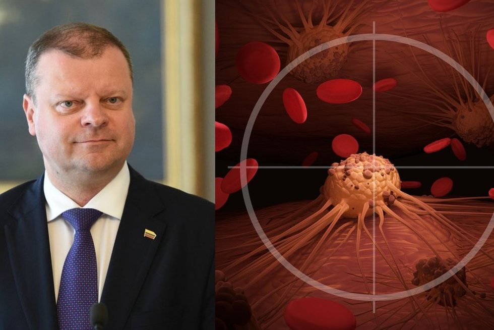 S. Skvernelis prispažino sergantis kraujo vėžiu (tv3.lt fotomontažas)
