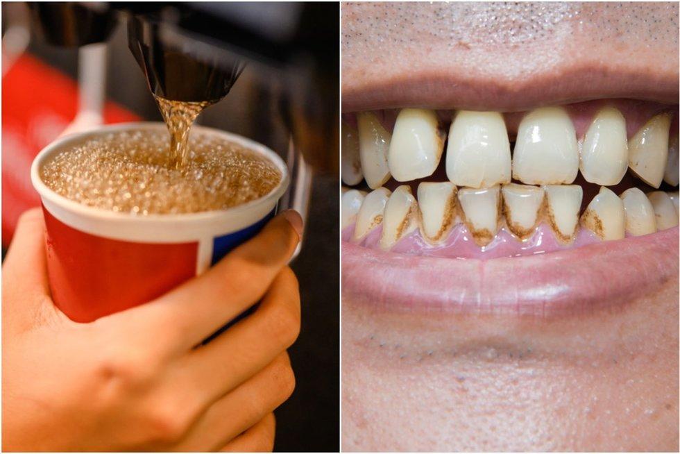 Kasdien gerdama gazuotus gėrimus moteris neteko dantų (nuotr. Shutterstock.com)