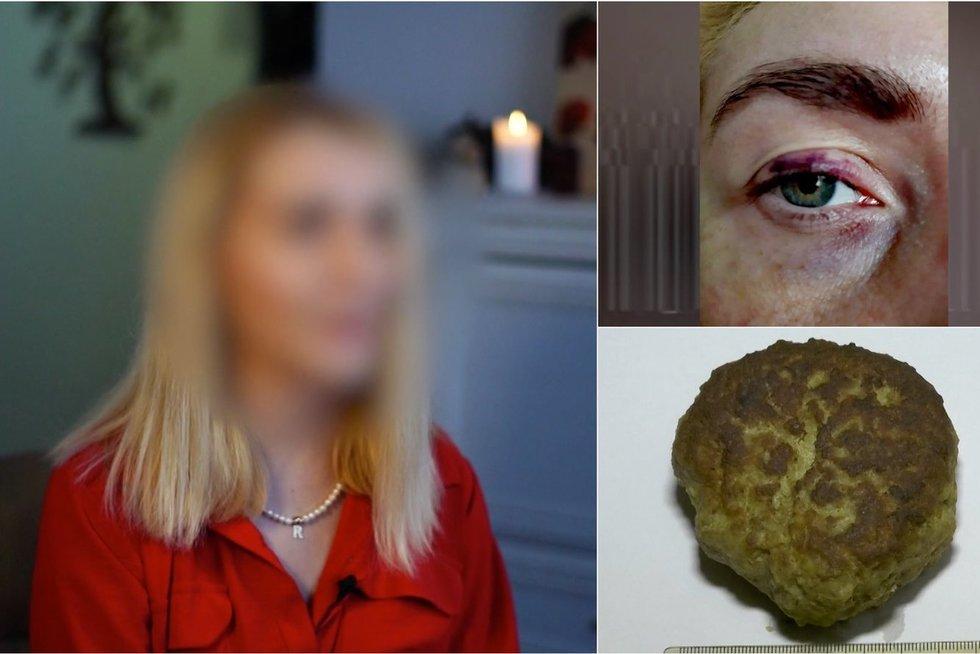 Prieš srovę. Jolanta kaltina buvusį vyrą smurtu: į akį trynė kotletą (nuotr. stop kadras)